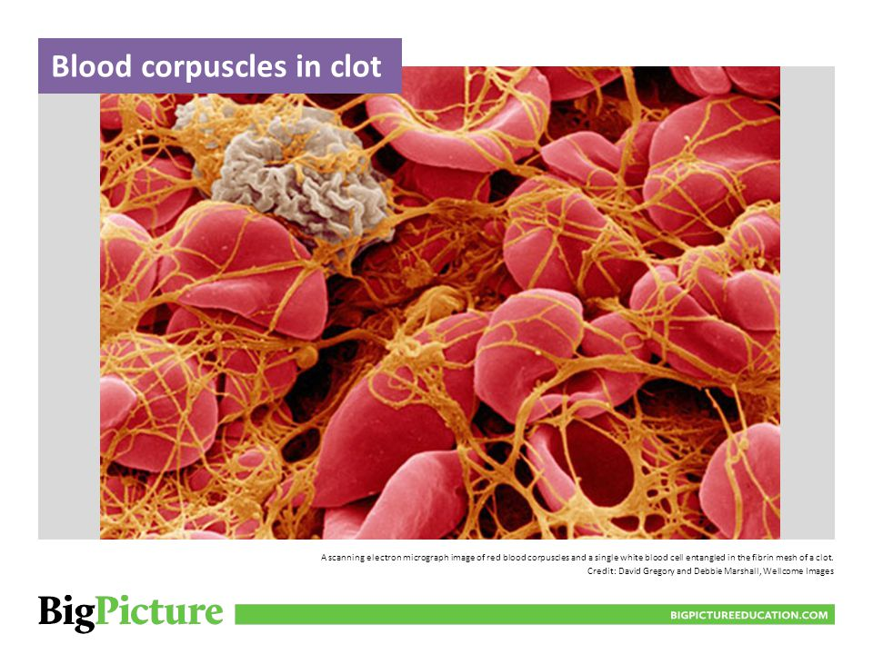 Blood corpuscles in clot