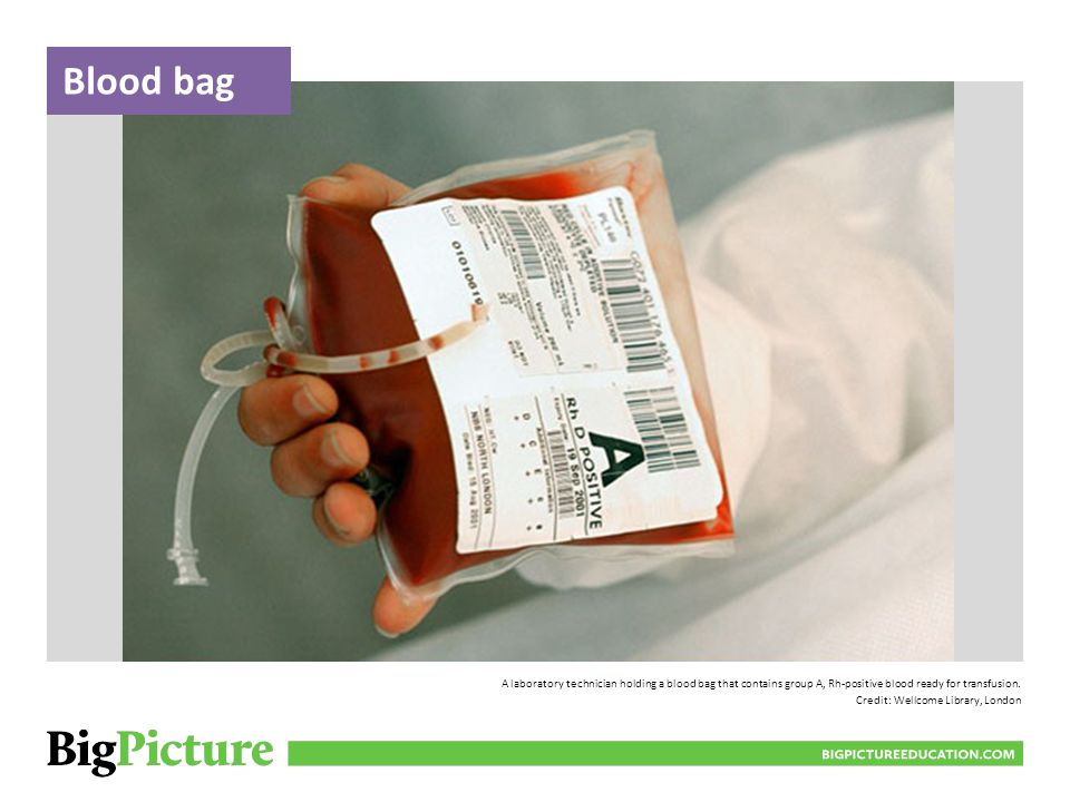 Blood bag BIGPICTUREEDUCATION.COM