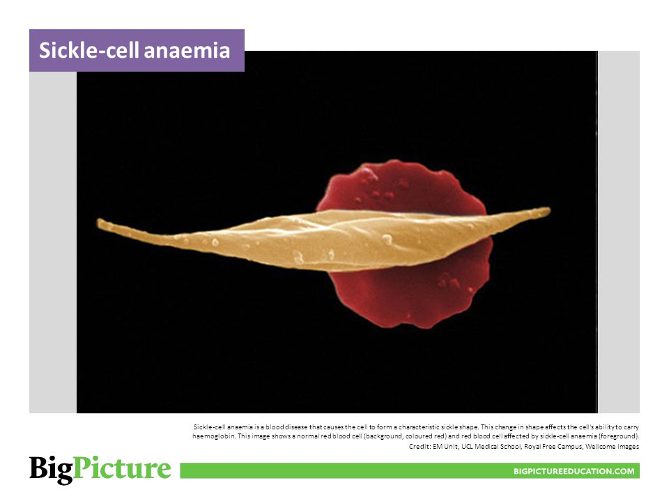 Sickle-cell anaemia BIGPICTUREEDUCATION.COM