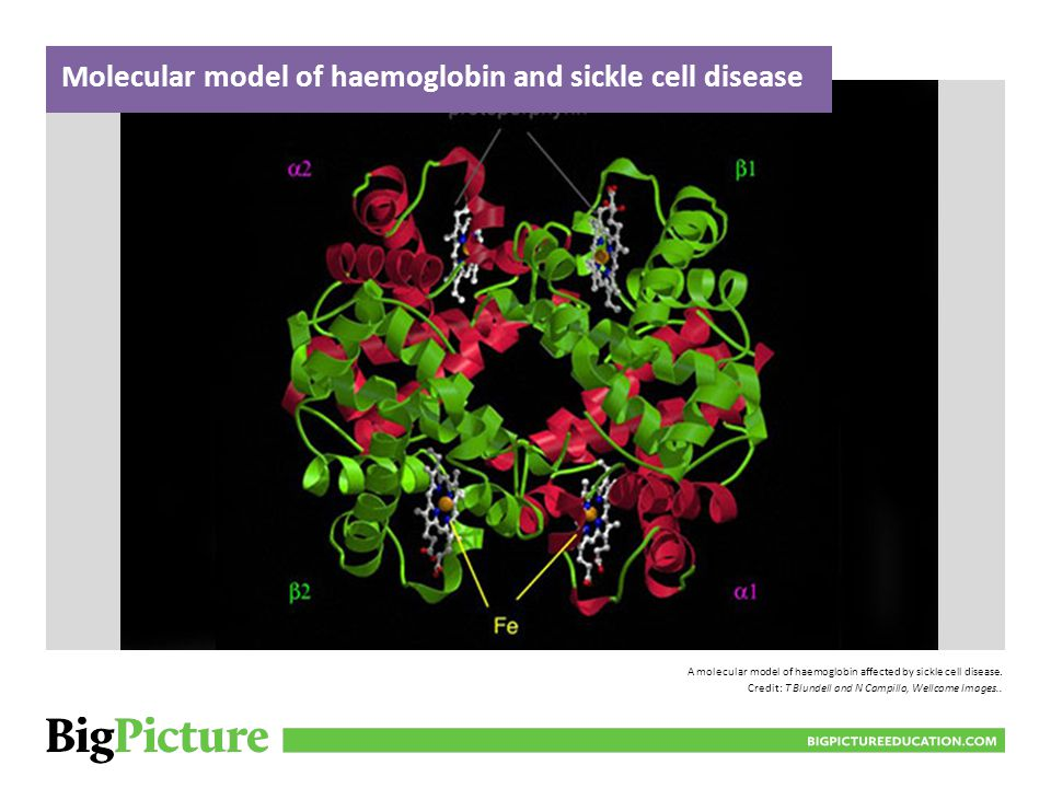 Molecular model of haemoglobin and sickle cell disease