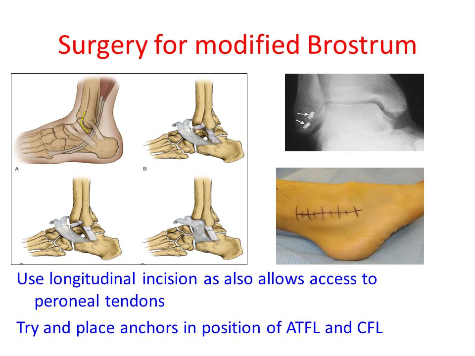 Surgery for modified Brostrum