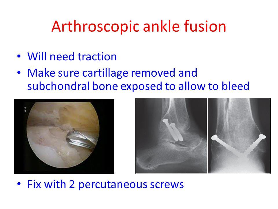 Arthroscopic ankle fusion