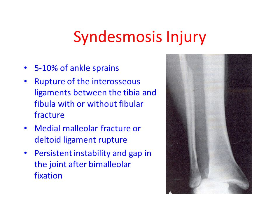 Syndesmosis Injury 5-10% of ankle sprains