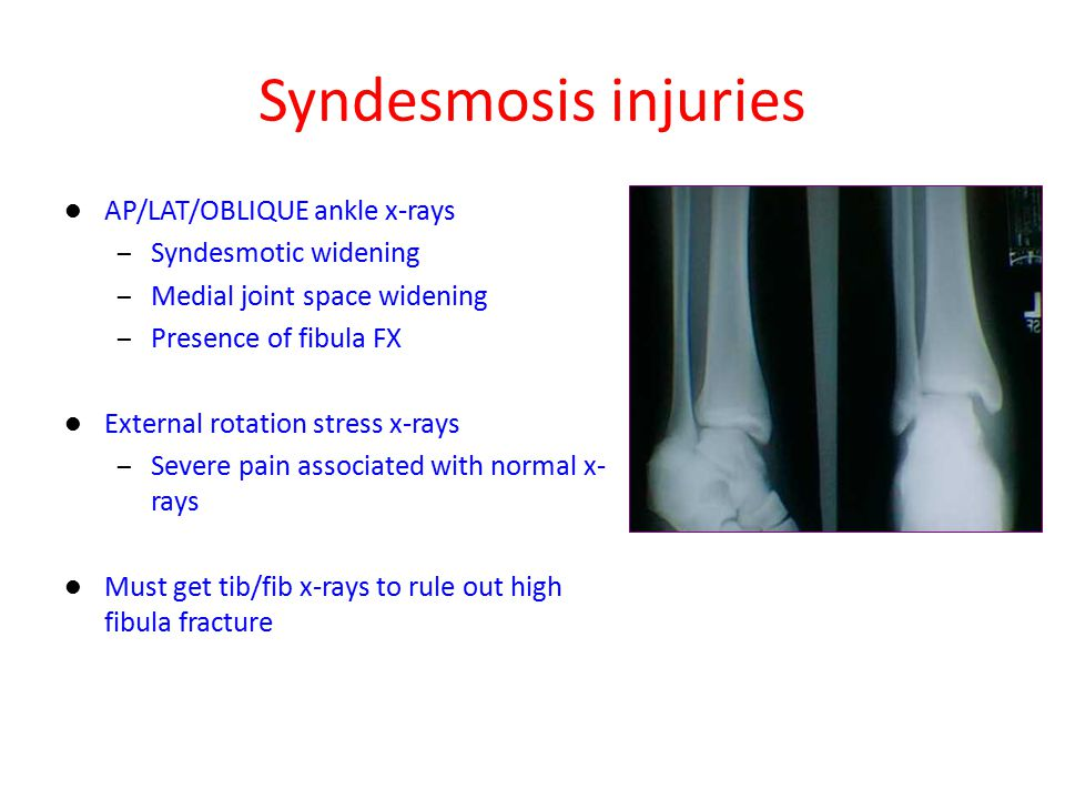 Syndesmosis injuries AP/LAT/OBLIQUE ankle x-rays Syndesmotic widening