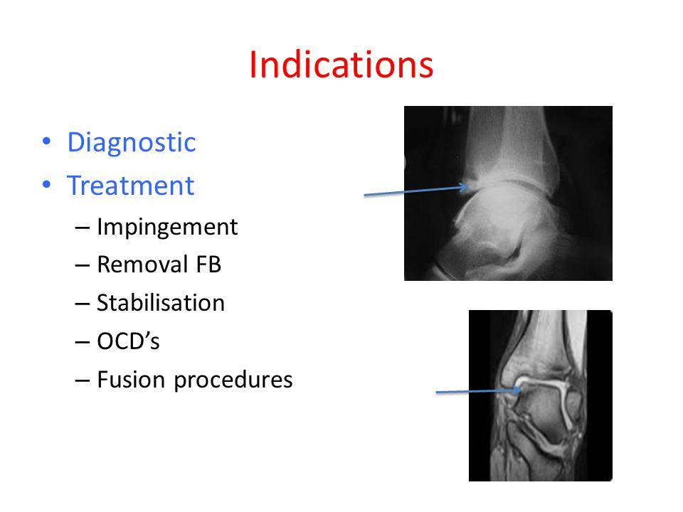 Indications Diagnostic Treatment Impingement Removal FB Stabilisation