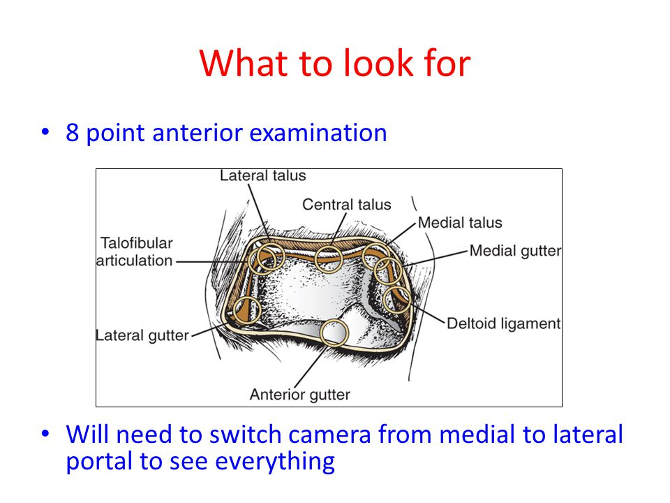 What to look for 8 point anterior examination