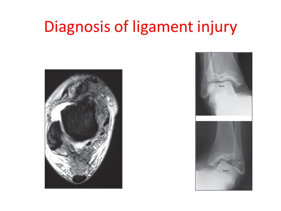 Diagnosis of ligament injury