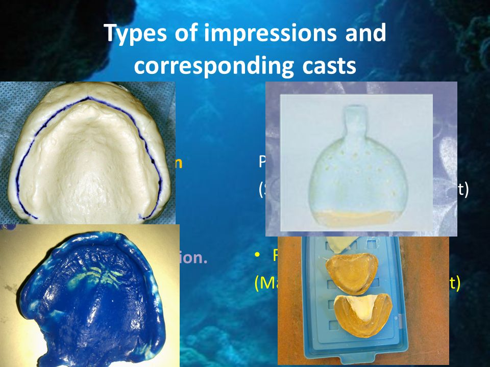Types of impressions and corresponding casts