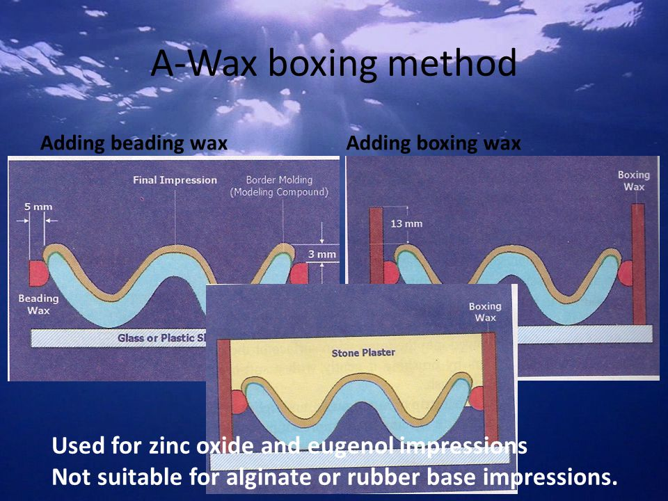 A-Wax boxing method Used for zinc oxide and eugenol impressions