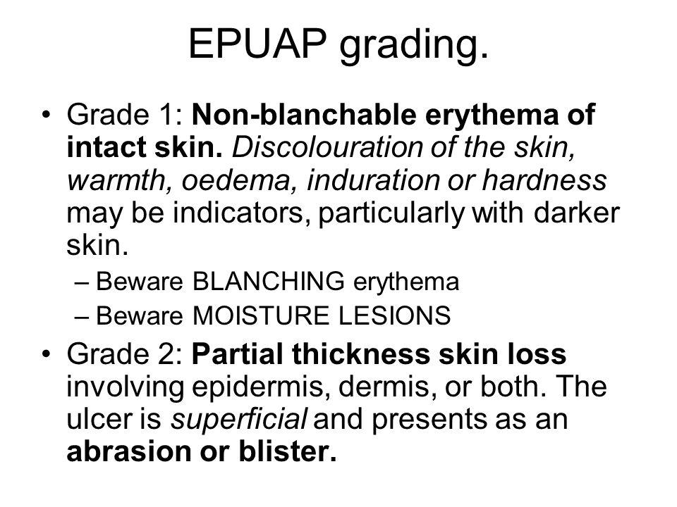 EPUAP grading.