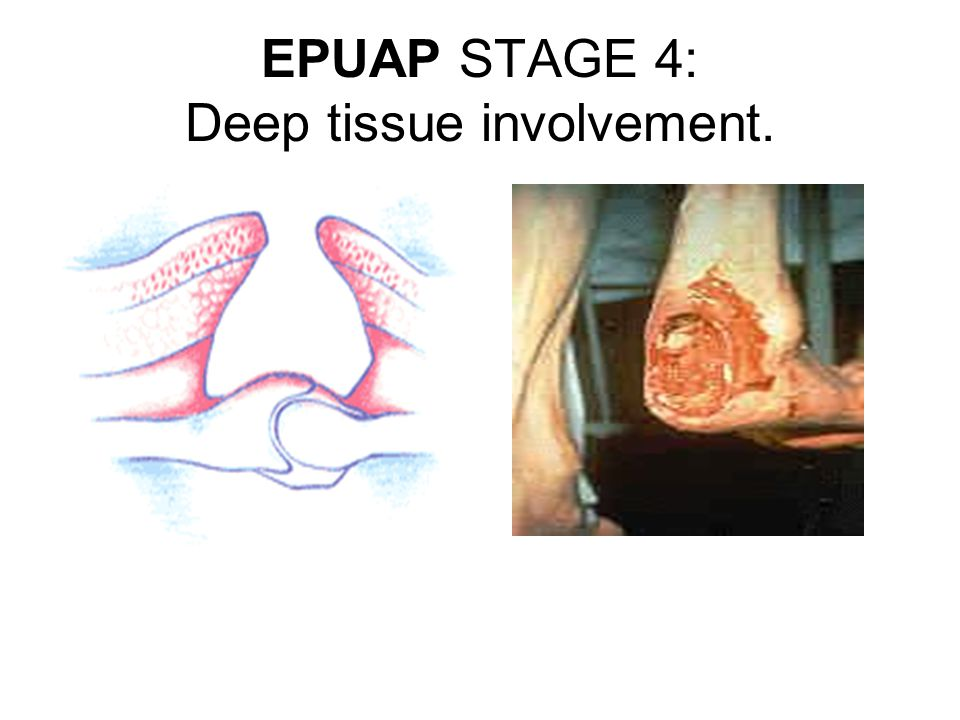 EPUAP STAGE 4: Deep tissue involvement.
