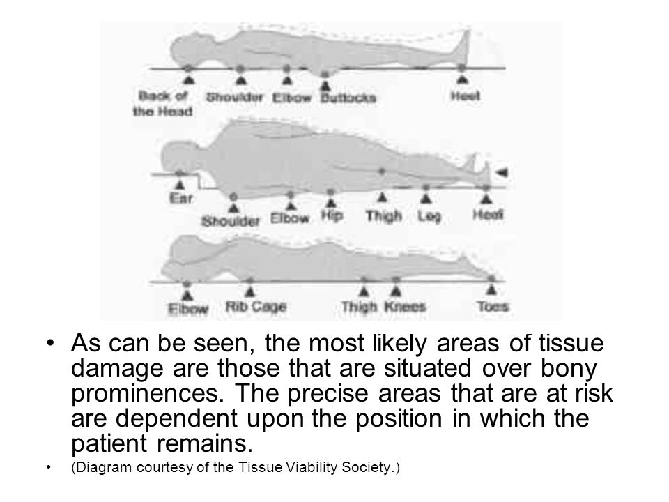 As can be seen, the most likely areas of tissue damage are those that are situated over bony prominences. The precise areas that are at risk are dependent upon the position in which the patient remains.