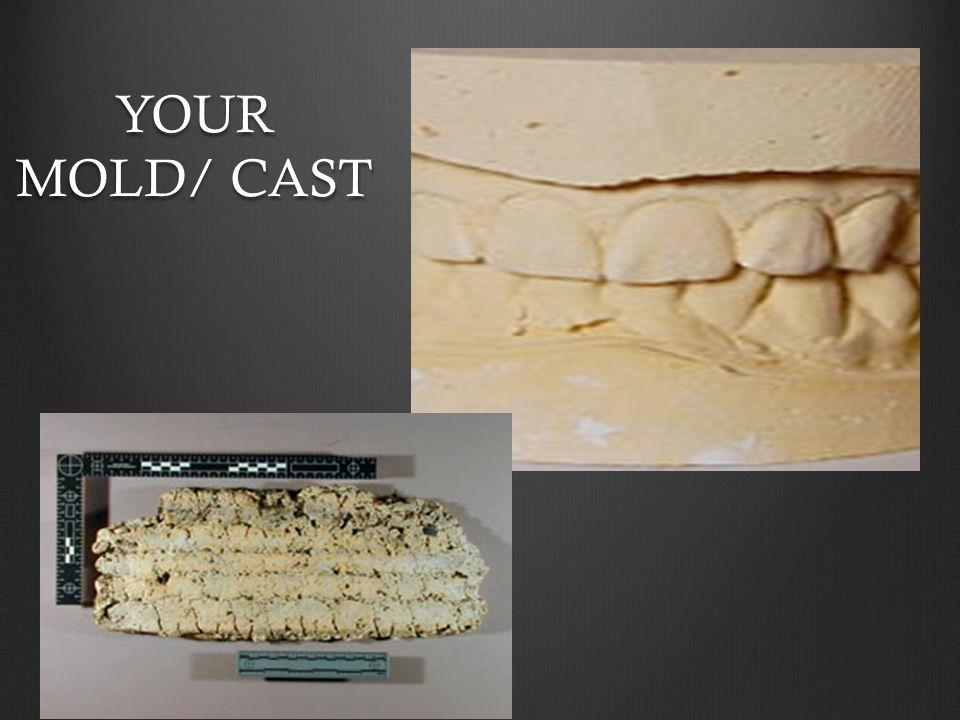 YOUR MOLD/ CAST