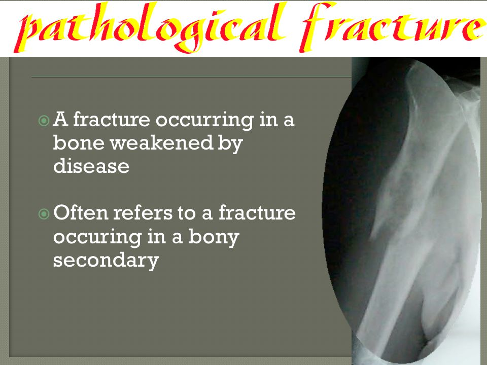 A fracture occurring in a bone weakened by disease