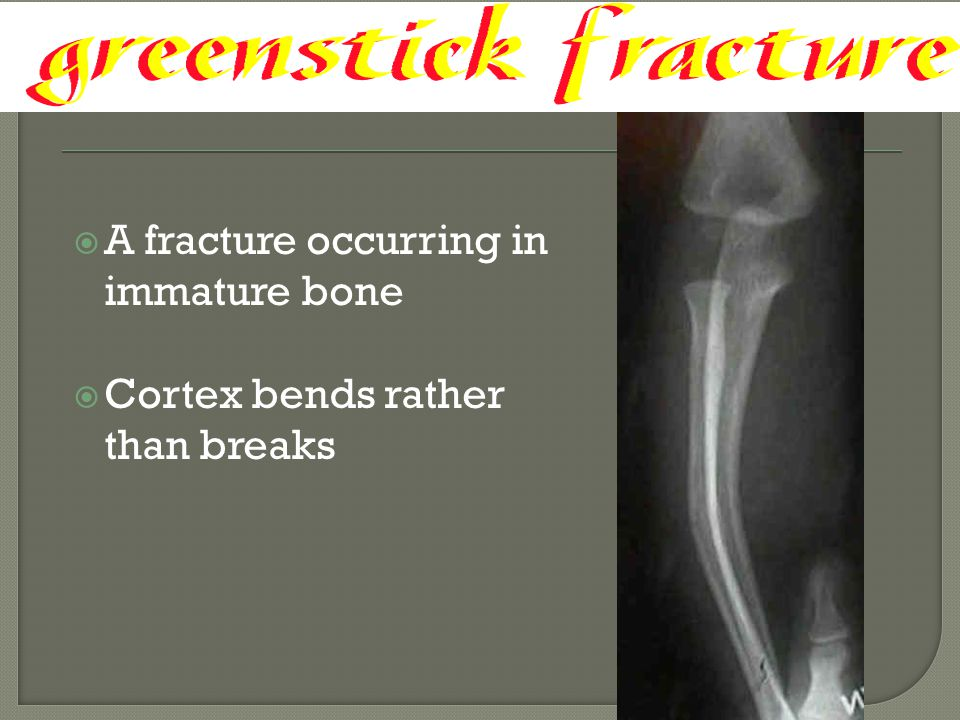 A fracture occurring in immature bone