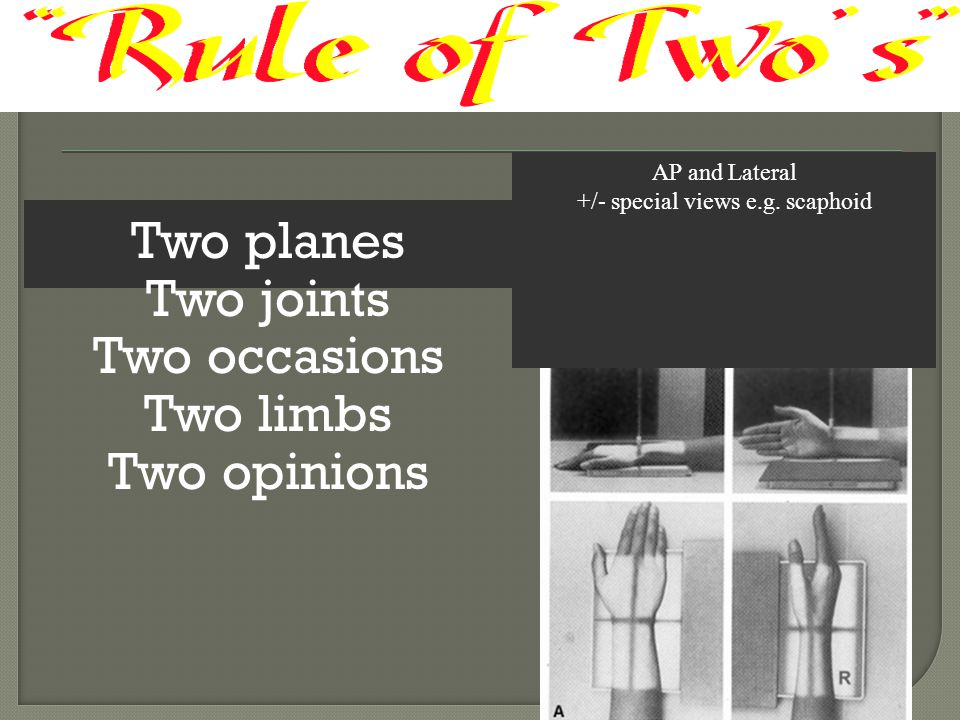 Two planes Two joints Two occasions Two limbs Two opinions