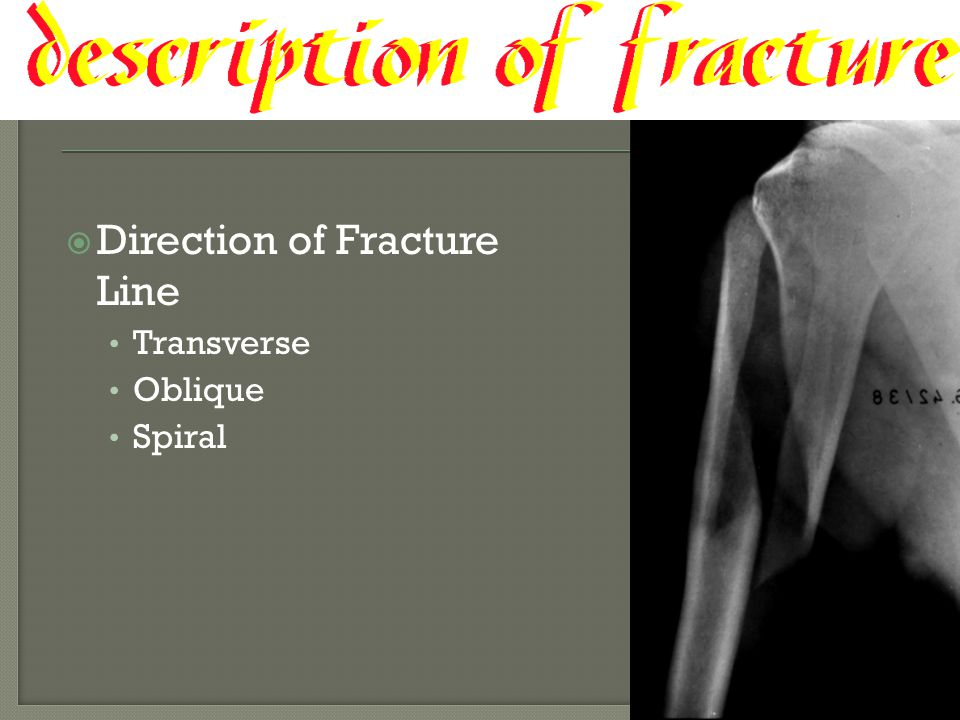Direction of Fracture Line