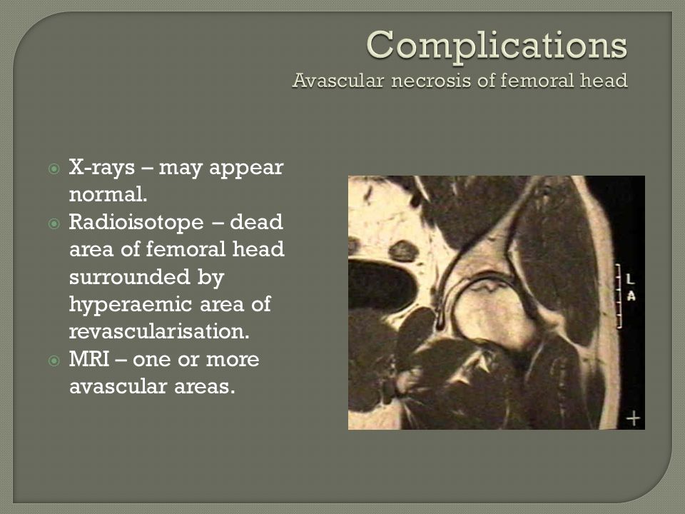 Complications Avascular necrosis of femoral head