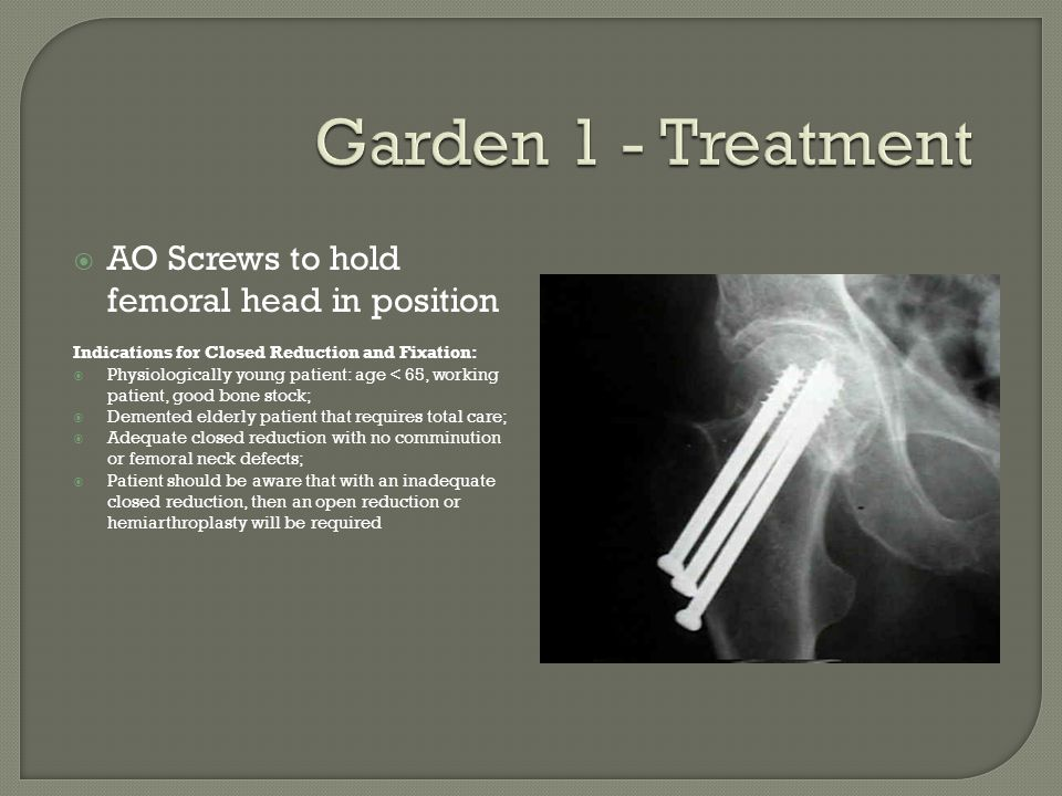 Garden 1 - Treatment AO Screws to hold femoral head in position