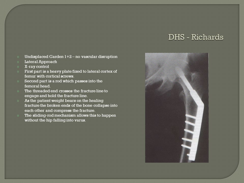 DHS - Richards Undisplaced Garden 1+2 – no vascular disruption