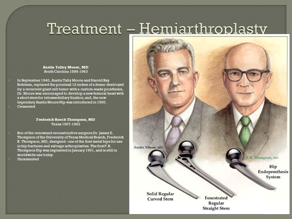 Treatment – Hemiarthroplasty