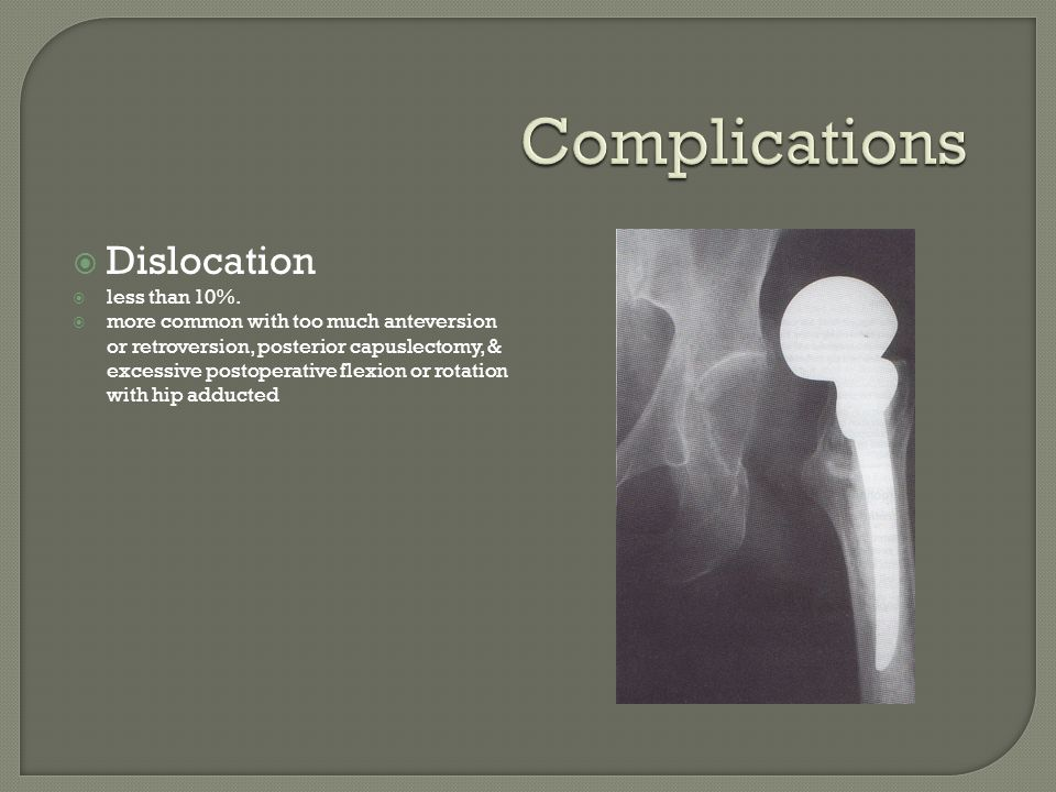 Complications Dislocation less than 10%.