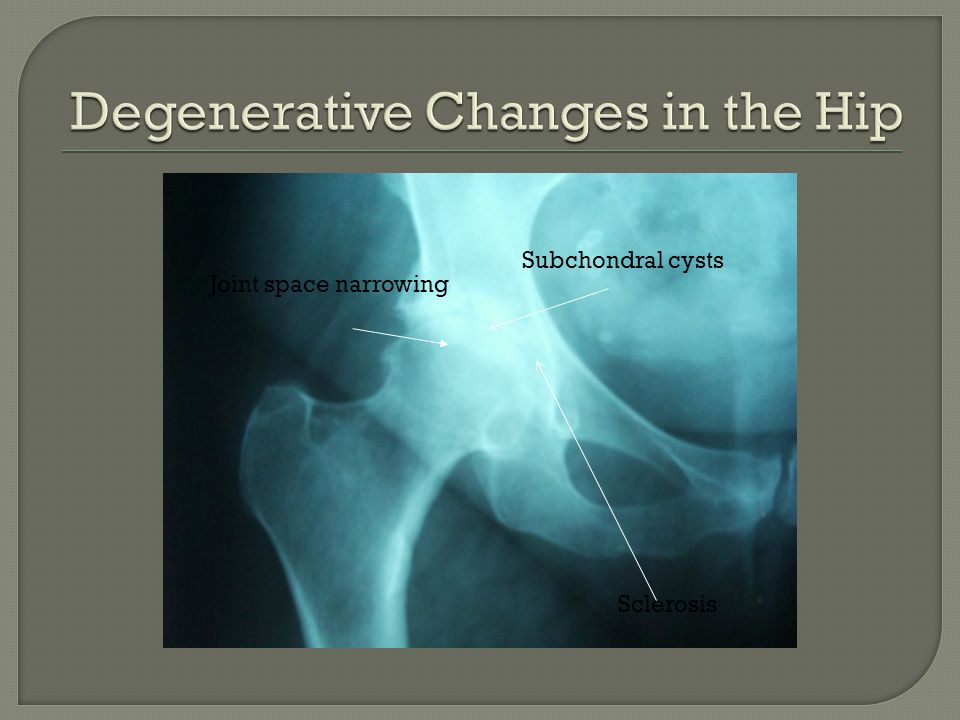 Degenerative Changes in the Hip