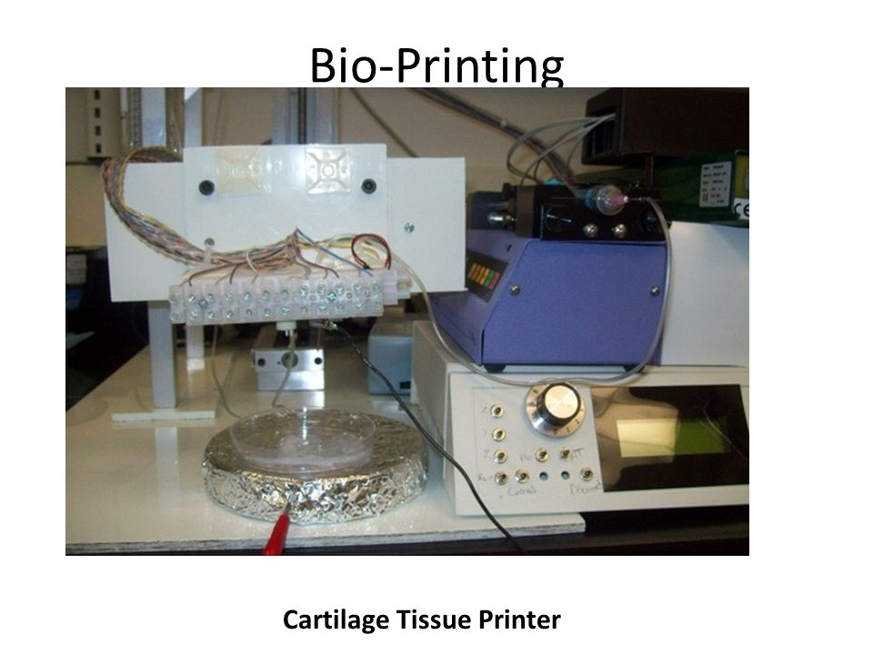 Cartilage Tissue Printer