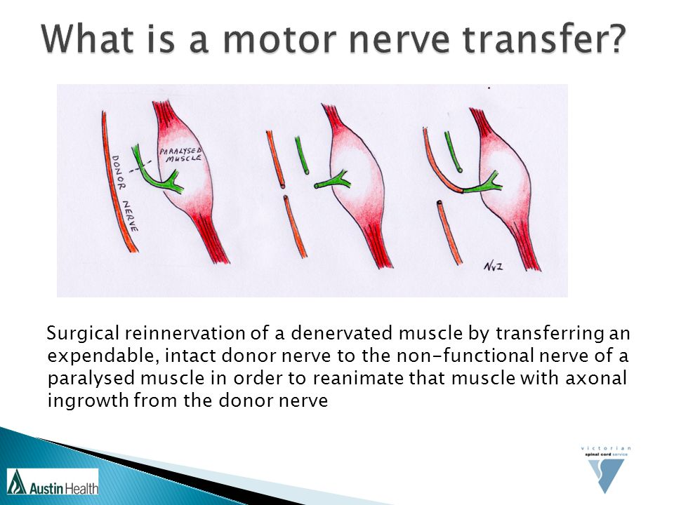 What is a motor nerve transfer