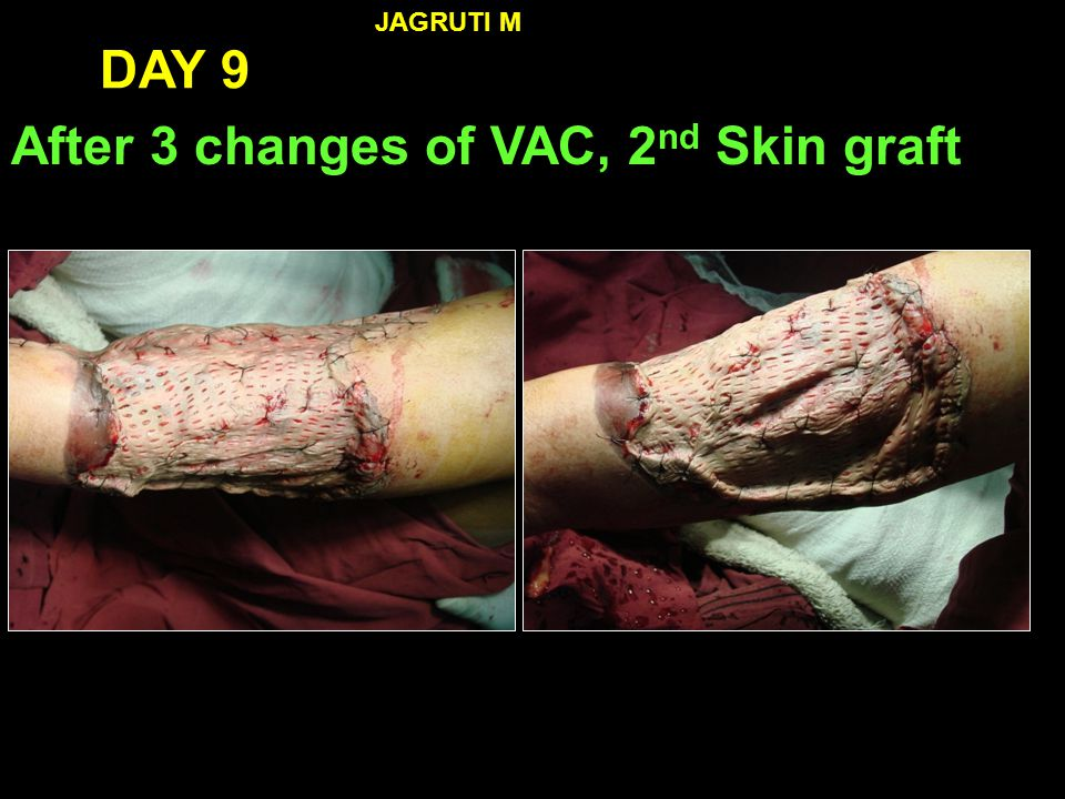 After 3 changes of VAC, 2nd Skin graft