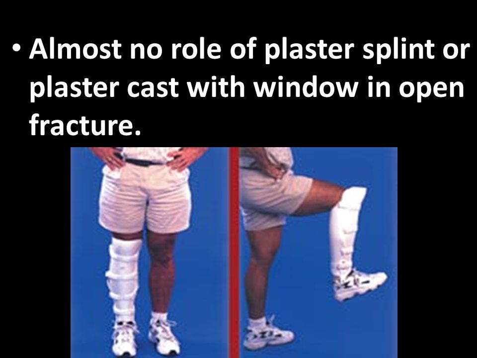 Almost no role of plaster splint or plaster cast with window in open fracture.