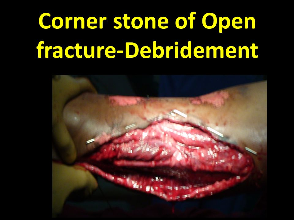 Corner stone of Open fracture-Debridement