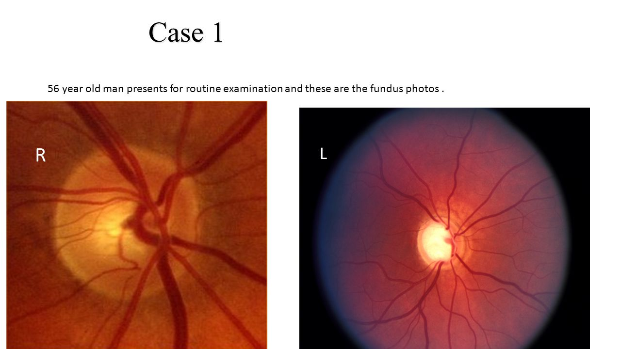 Case 1 56 year old man presents for routine examination and these are the fundus photos . L. R. L.