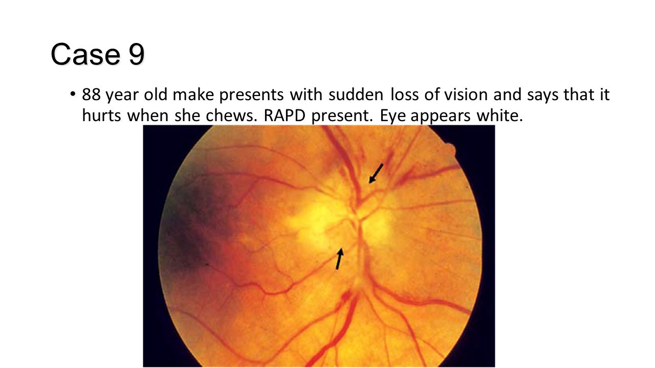Case 9 88 year old make presents with sudden loss of vision and says that it hurts when she chews. RAPD present. Eye appears white.