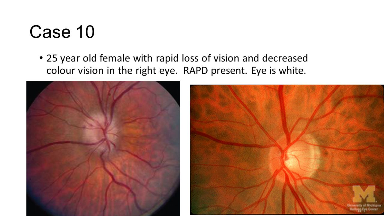 Case 10 25 year old female with rapid loss of vision and decreased colour vision in the right eye. RAPD present. Eye is white.