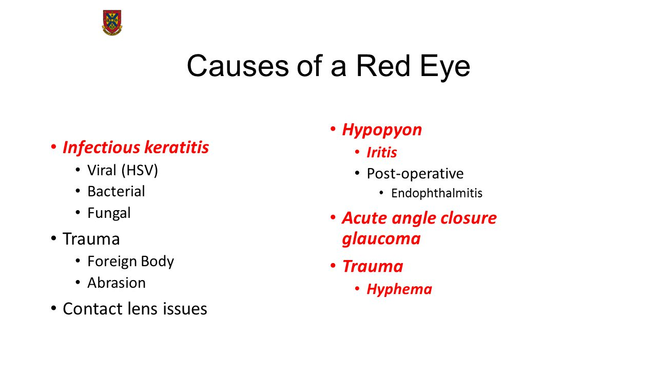Causes of a Red Eye Hypopyon Infectious keratitis