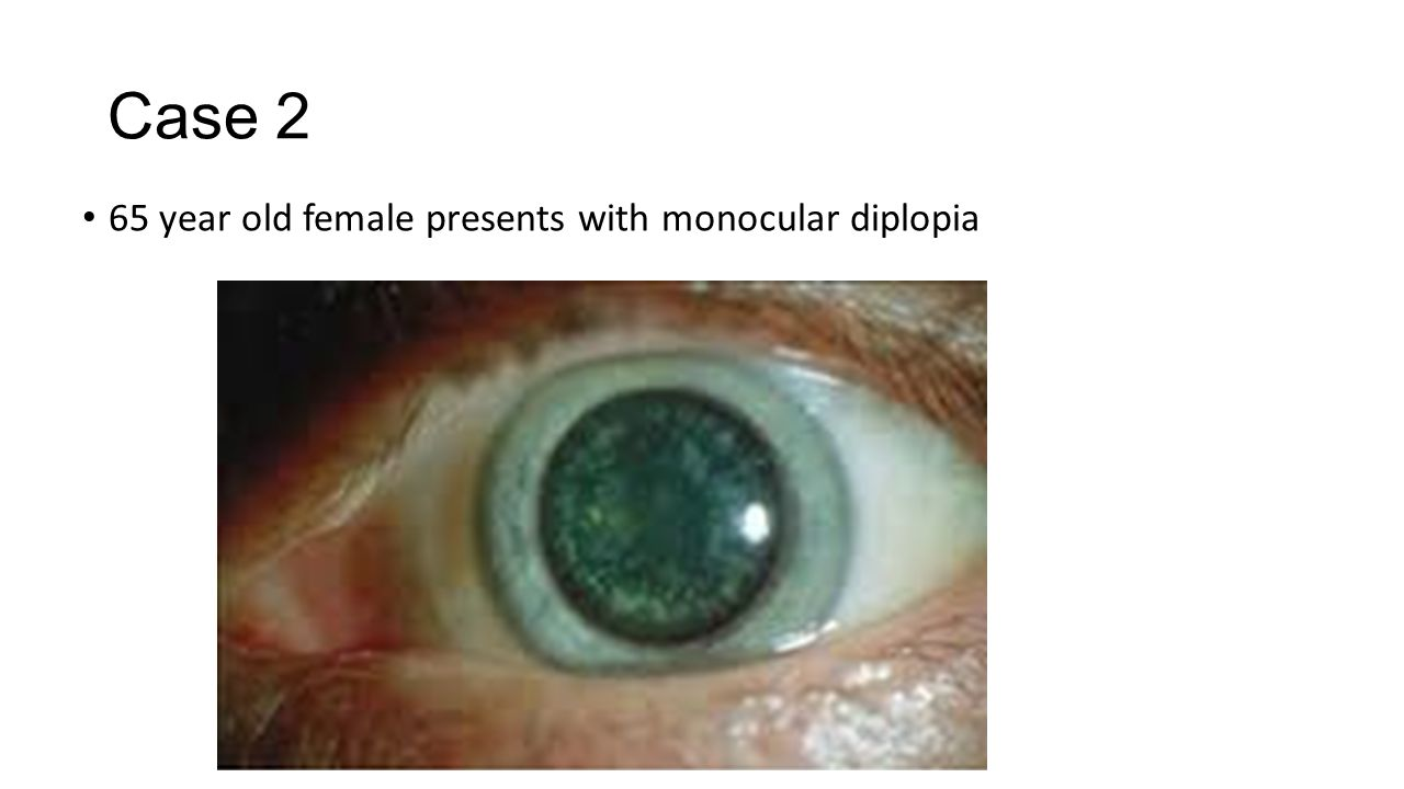 Case 2 65 year old female presents with monocular diplopia