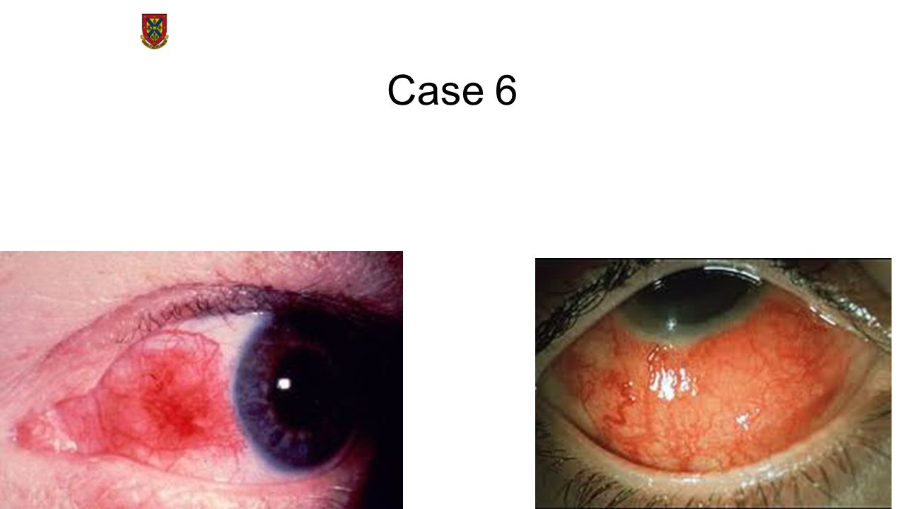 Case 6 Episcleritis – inflammation of the episclera