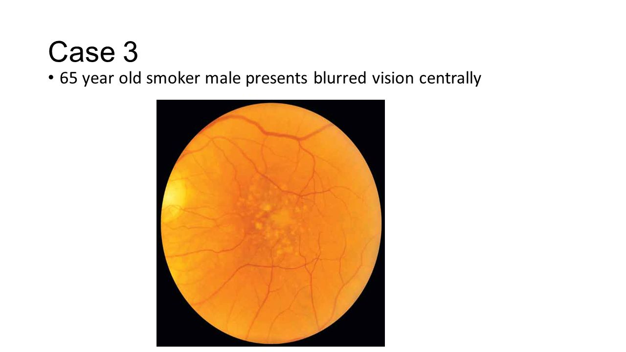 Case 3 65 year old smoker male presents blurred vision centrally