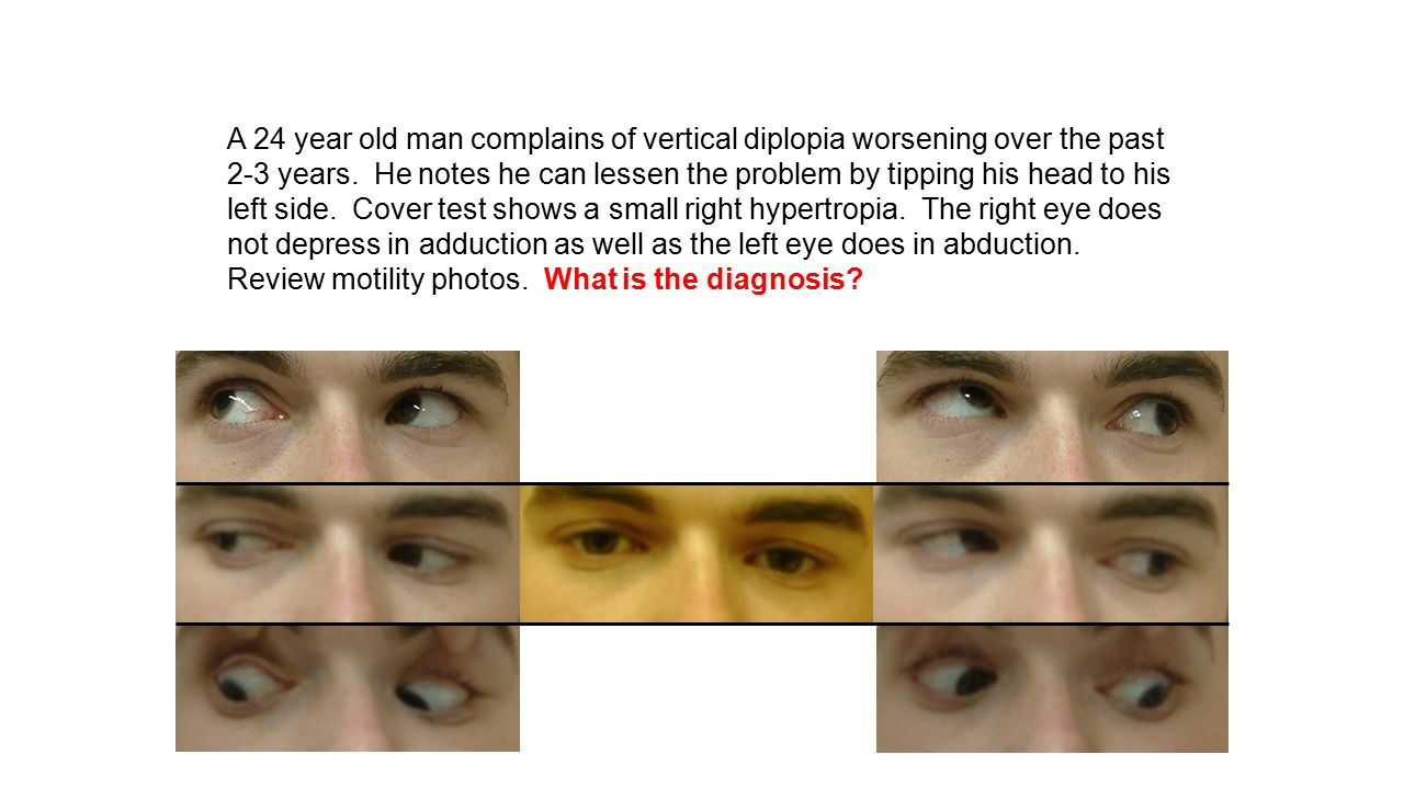 A 24 year old man complains of vertical diplopia worsening over the past 2-3 years.