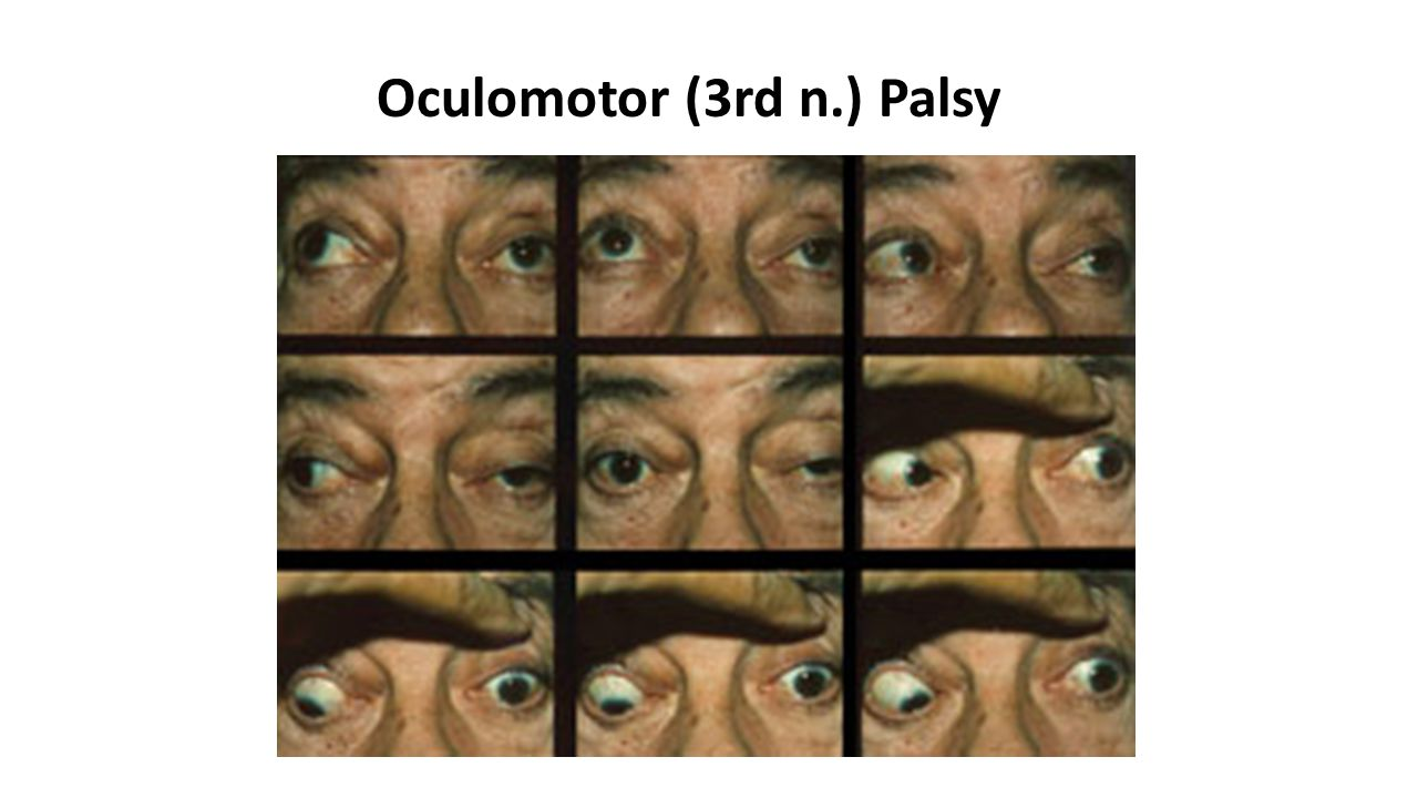 Oculomotor (3rd n.) Palsy