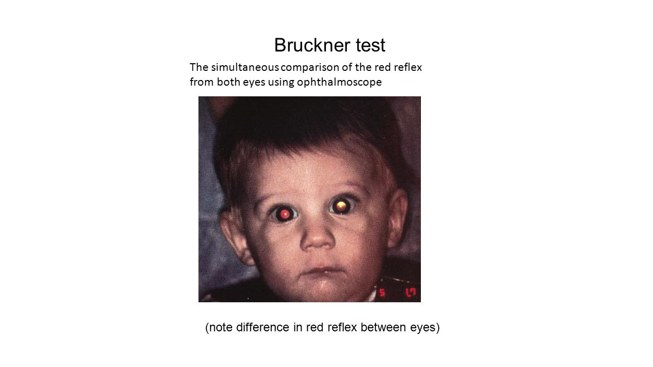 Bruckner test The simultaneous comparison of the red reflex from both eyes using ophthalmoscope.