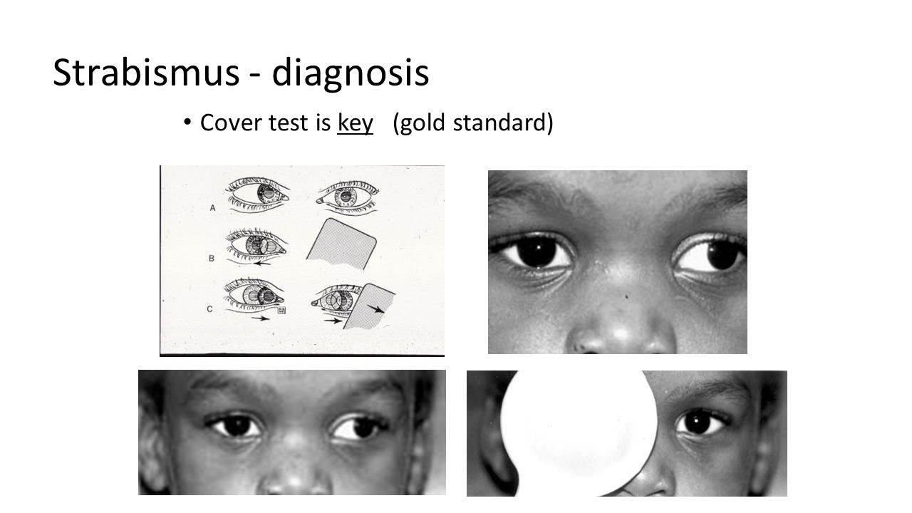 Strabismus - diagnosis