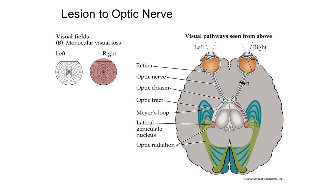 3.1.1 Munoz Lesion to Optic Nerve 56