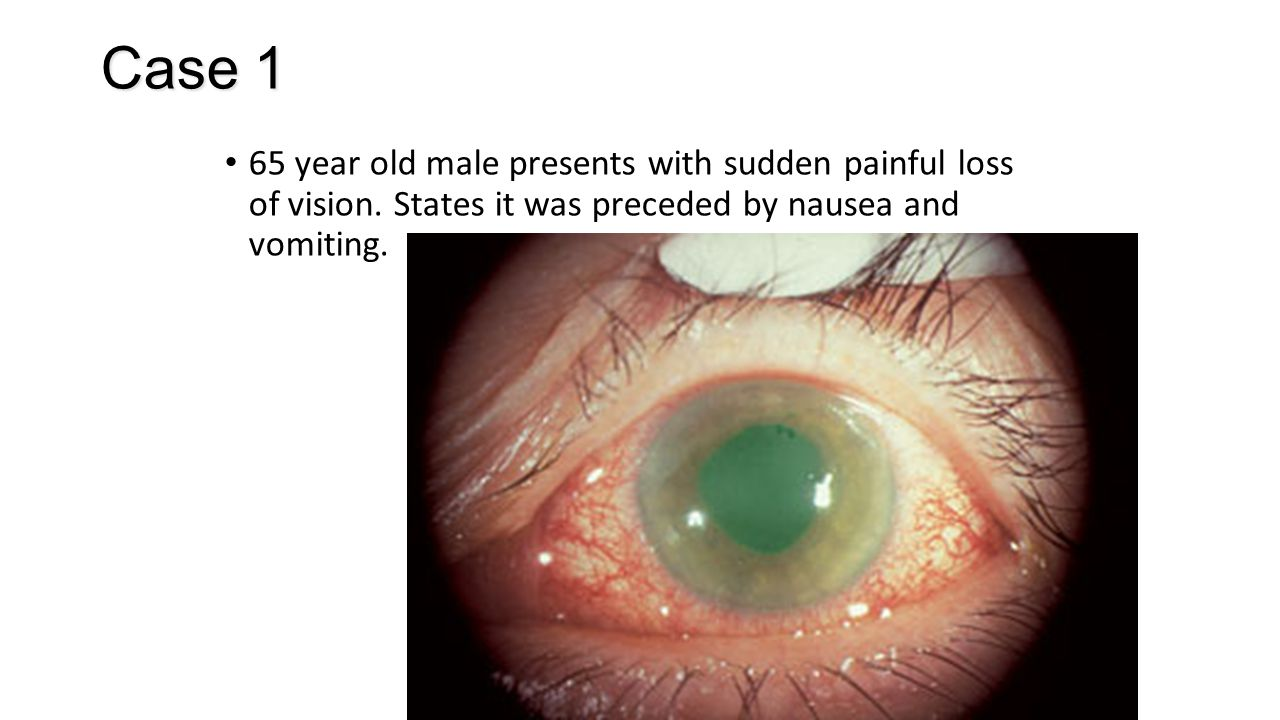 Case 1 65 year old male presents with sudden painful loss of vision.