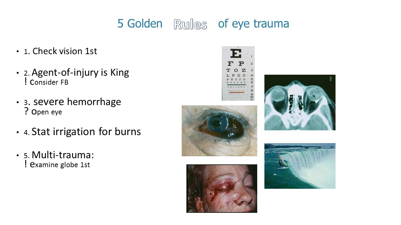 Rules 5 Golden of eye trauma 1. Check vision 1st