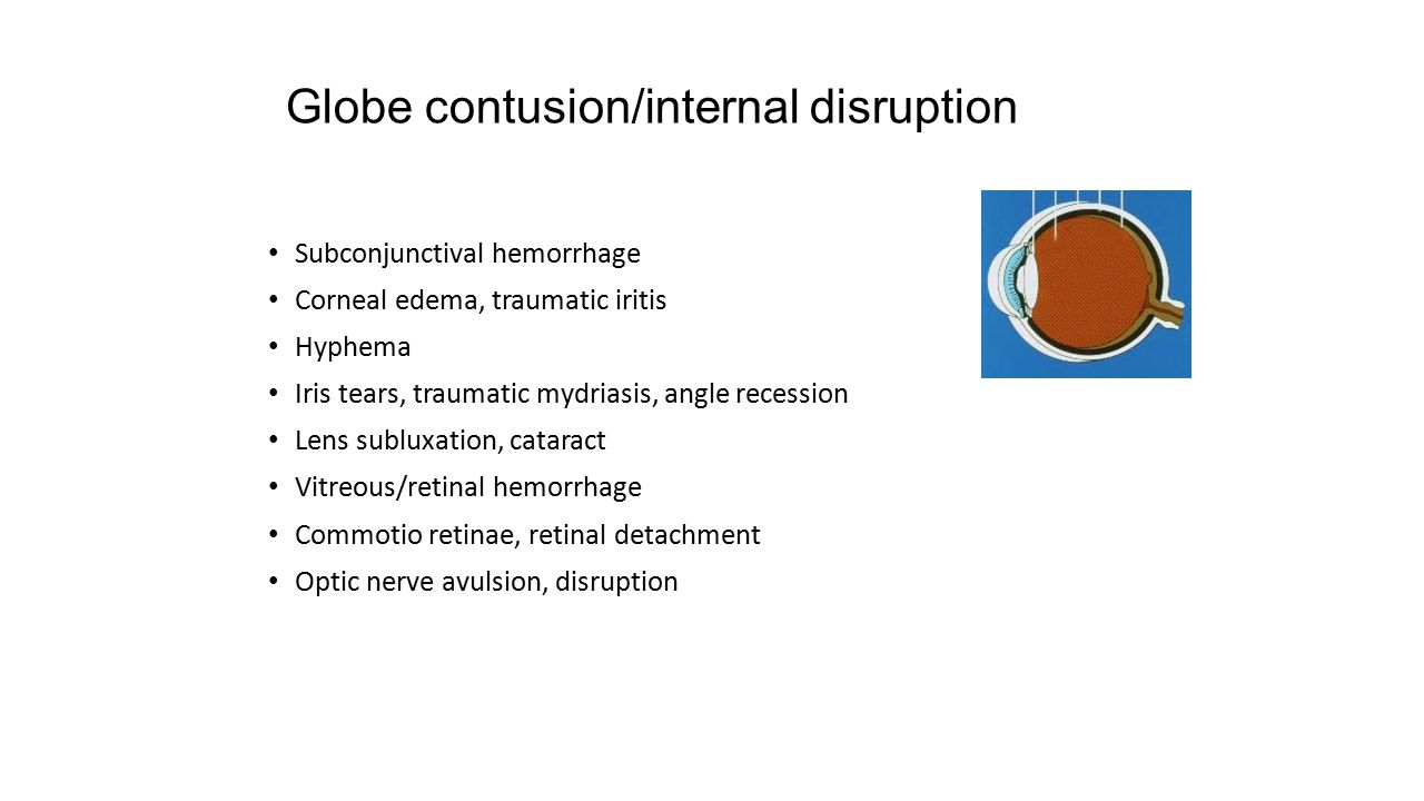 Globe contusion/internal disruption