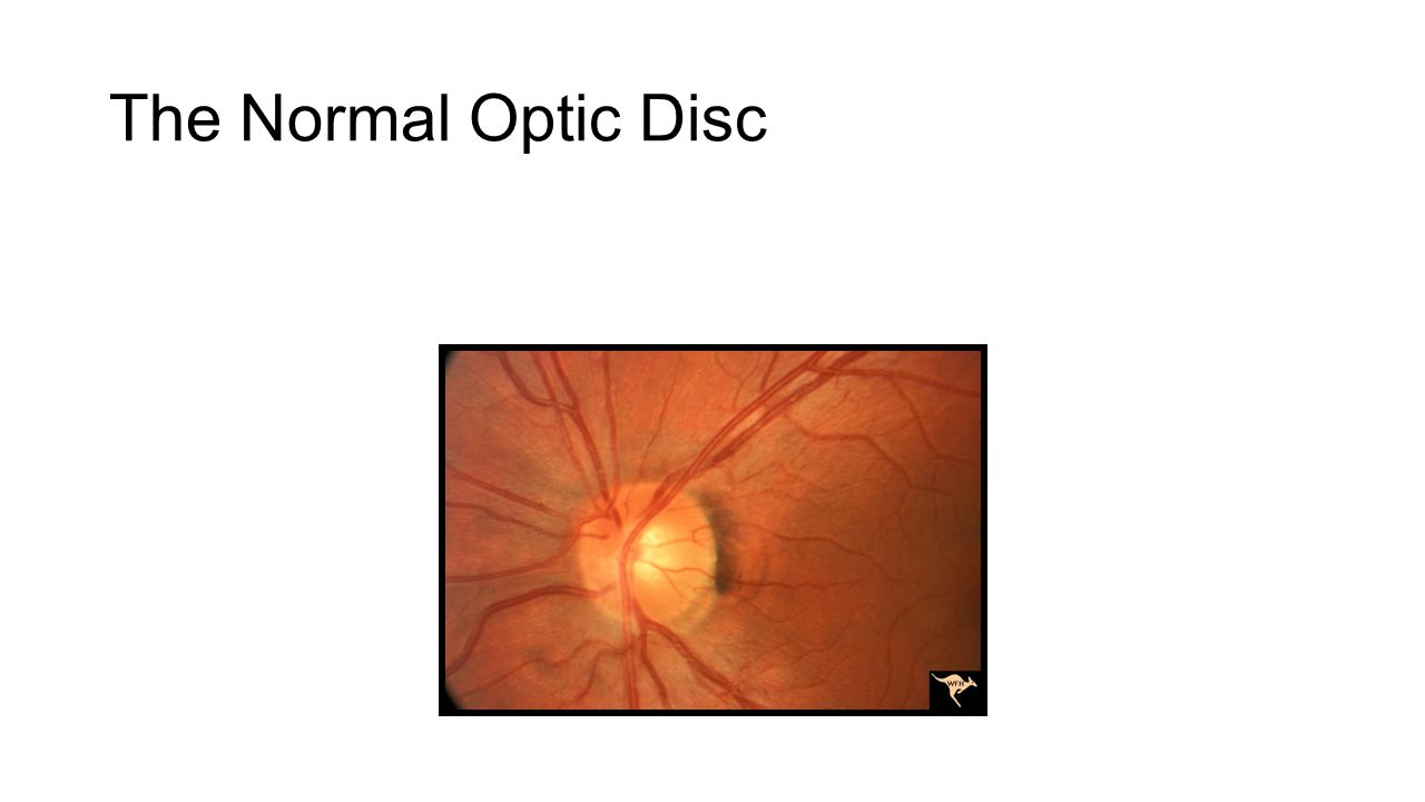 The Normal Optic Disc Normal CD ratio – ~0.4