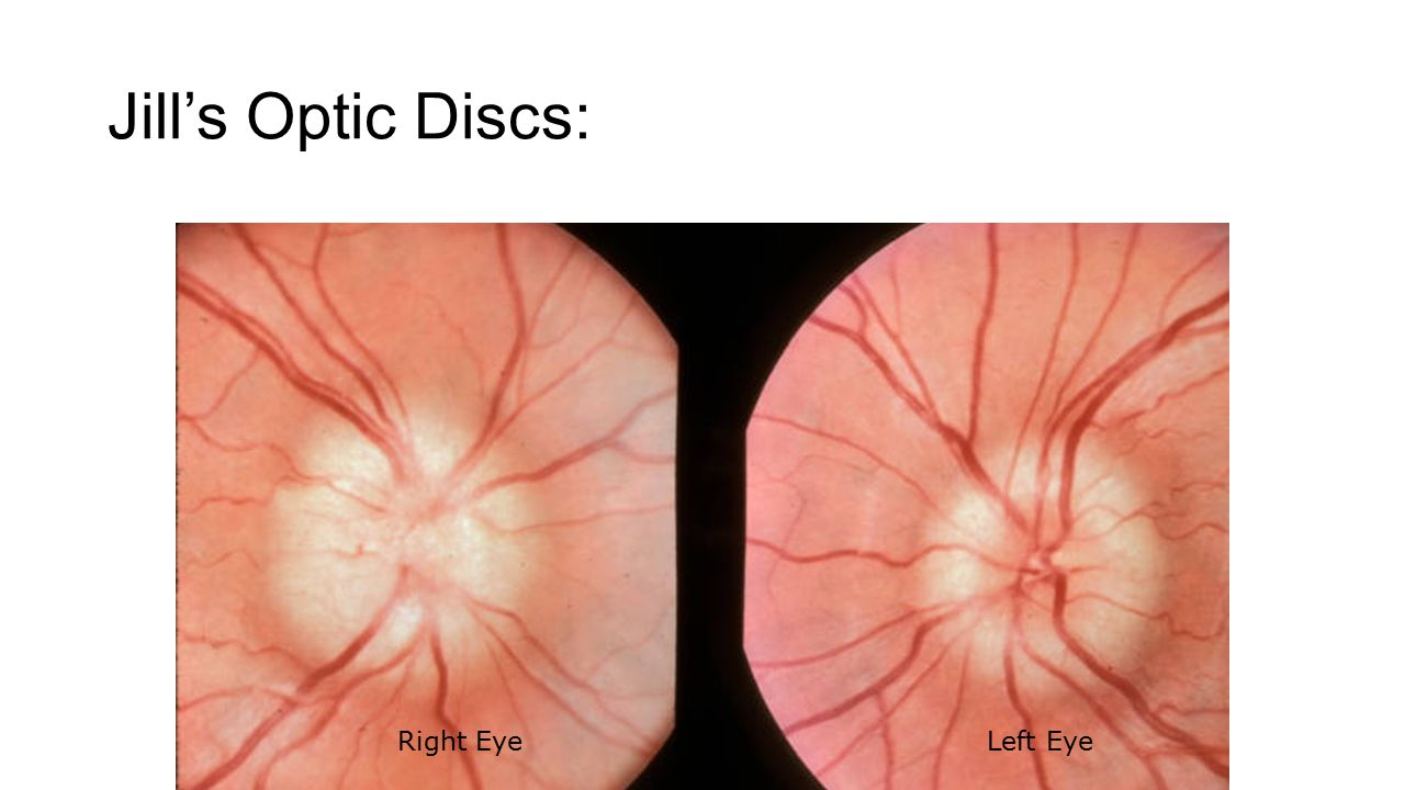 Jill's Optic Discs: Right Eye Left Eye