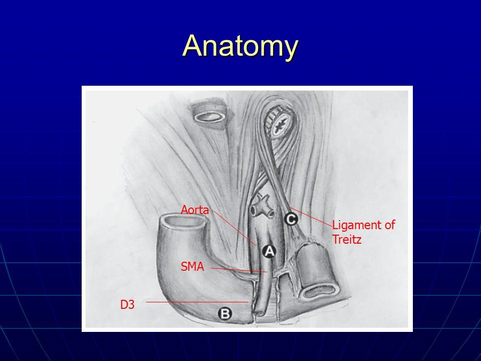 Anatomy Aorta Ligament of Treitz SMA D3